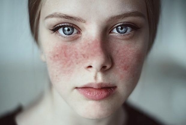 Lupus & AIDs