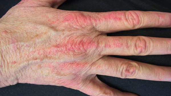 Picture of Dermatomyositis