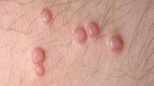 Picture of Bumps Near Vaginal Opening