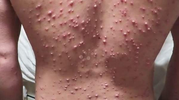 Picture of Chickenpox