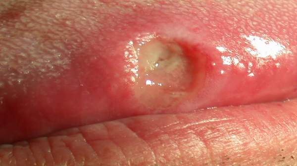 Picture of Mouth Ulcers