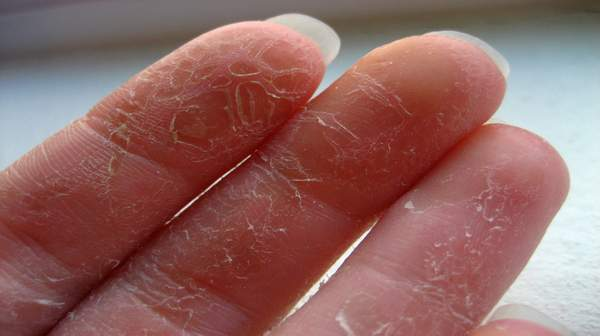 Picture of Peeling Skin