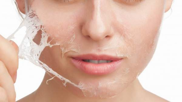 picture of Chemical Peel