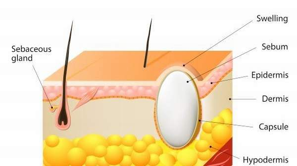picture of Sebaceous-Cyst