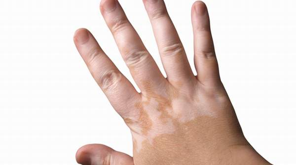 picture of Vitiligo