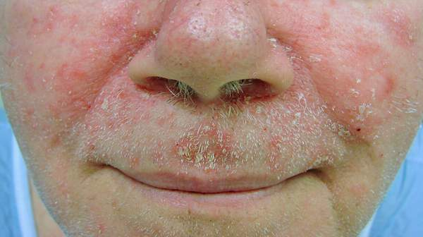 picture of Seborrheic Dermatitis