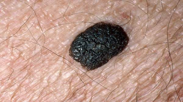 Picture of seborrhoeic keratoses look like