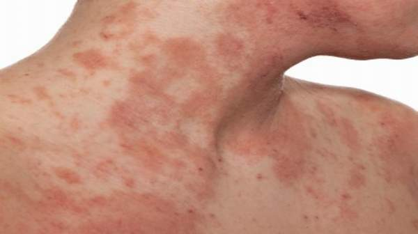 Eczema: Causes, Symptoms and Treatment
