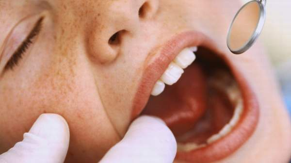 Persistent patches or other changes in your mouth need a dentist's evaluation.