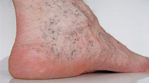 Spider Veins: Reasons behind the Blue and Purple Lines