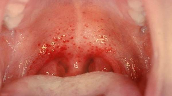 Pictures of Pharyngitis Symptoms, Contagiou