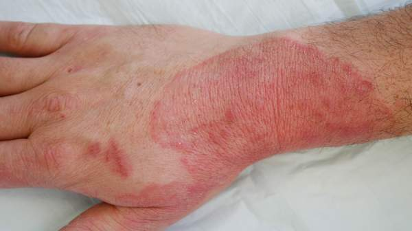 Pictures of Fungal Infections