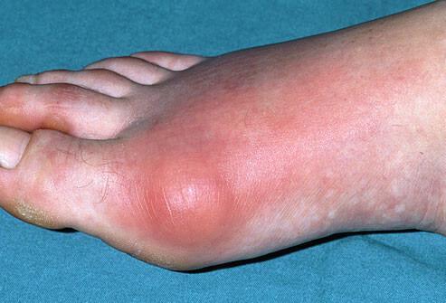 Gout or Arthritis