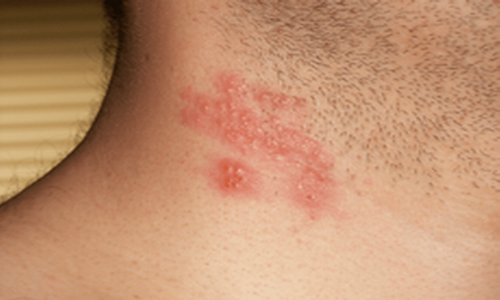 Picture of Shingles (Herpes Zoster) - WebMD