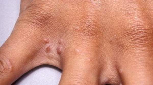 The scabies rash is often apparent on the head, face, neck,