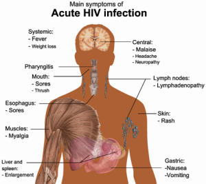 aids, hiv, human immunodeficiency virus, acquired immunodeficiency syndrome