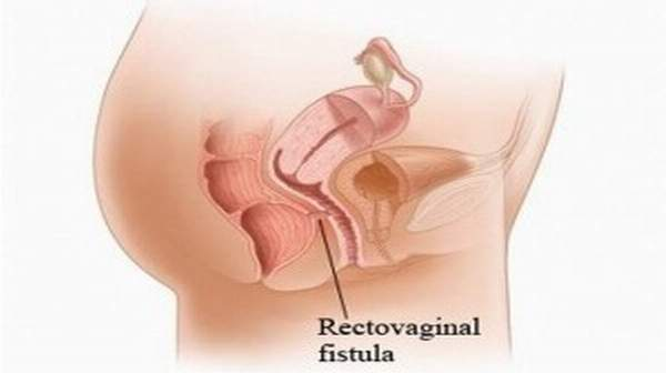 An obstetric fistula is a hole between the vagina and rectum or bladder that is caused by prolonged obstructed labor, leaving a woman incontinent of urine or feces or both.