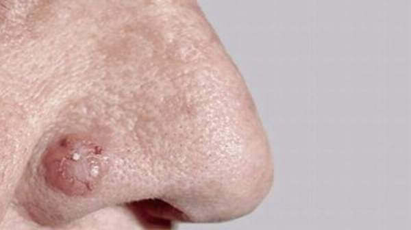 basal cell carcinoma, basal cell carcinoma causes, basal cell carcinoma treatment, basal cell carcinoma symptoms