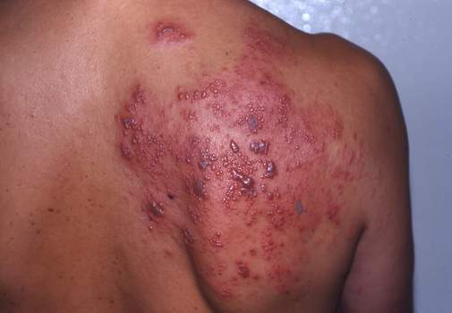 HIV Rash, HIV infection, aids, hiv, human immunodeficiency virus, acquired immunodeficiency syndrome
