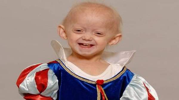 Progeria: What Causes & Other similar syndromes