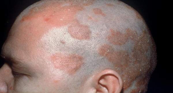 eczema scrotum #11