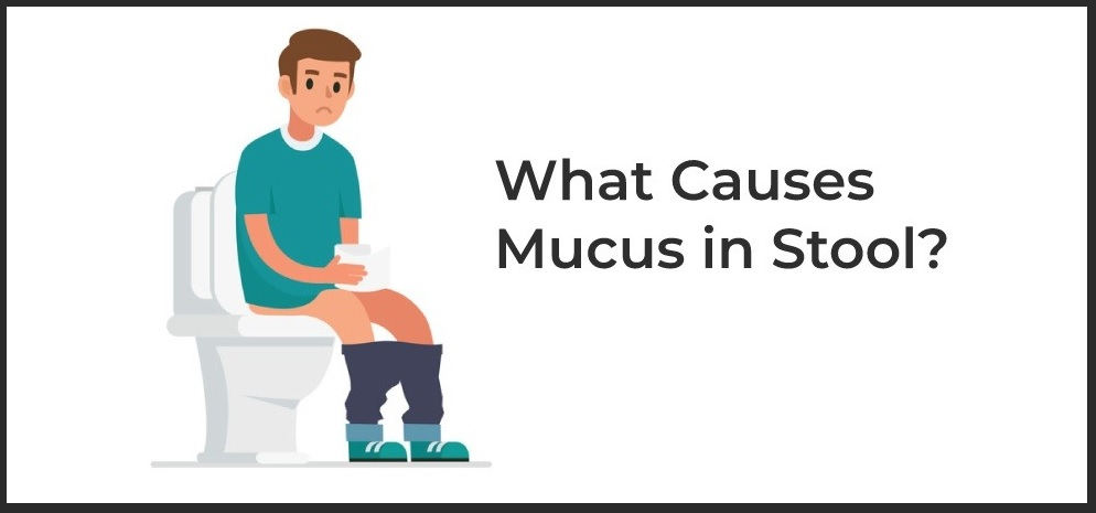 Mucus in Stool Causes and Treatment