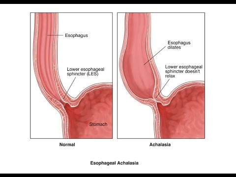 Achalasia: Definition, Causes, Symptoms, & Treatment