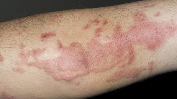 Poison ivy - oak - sumac rash: MedlinePlus Medical ...