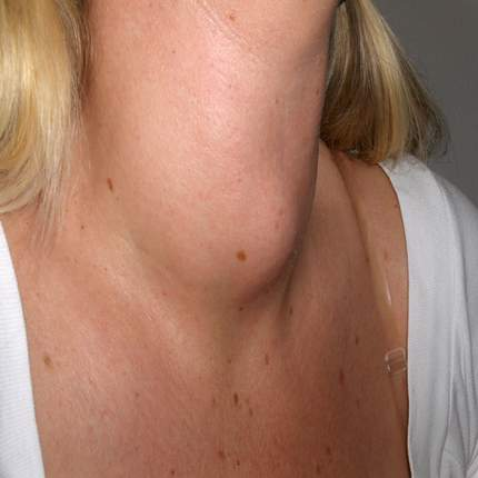 Goiter: occur without a known reason