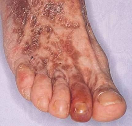 What is Cryoglobulinemia