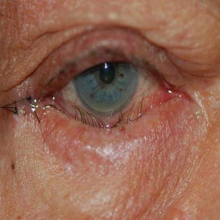 Entropion eyelid commonly affected