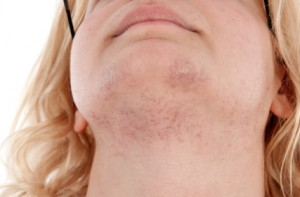 Medication For Unwanted Facial Hair On Women 48