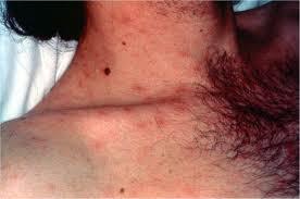 acute mild-hiv-rash