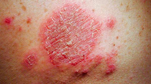 picture of discoid eczema