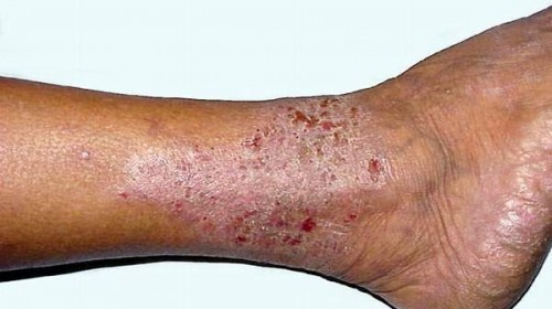 Picture of varicose eczema