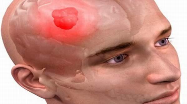 Picture of Brain Tumor
