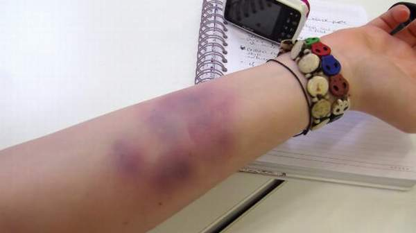 Picture of Bruises on hands