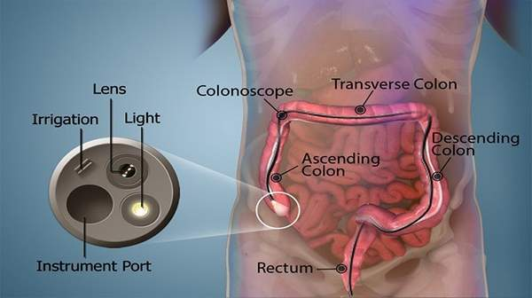 Picture of Colonoscopy