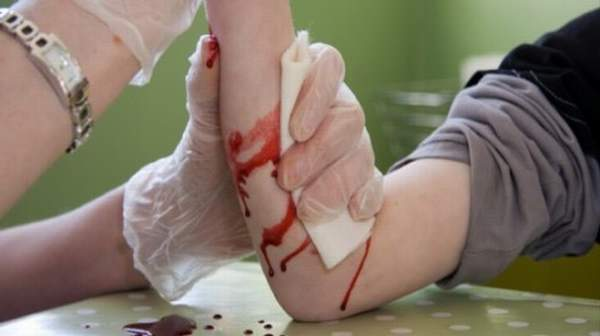 Picture of Severe Bleeding