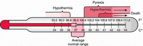 Picture of hyperthermia