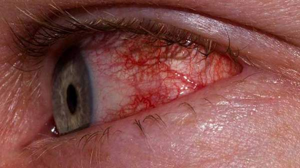 Picture of Allergic Conjunctivitis