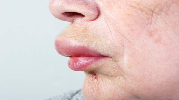 picture of Angioedema