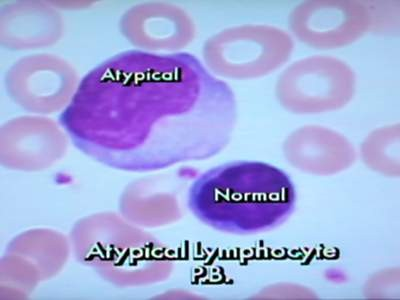 Atypical Lymphocyte PB