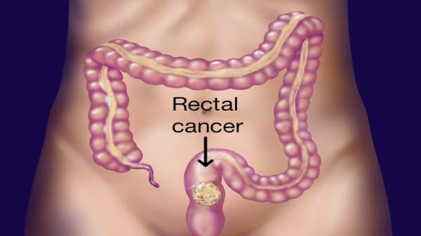 Picture of Rectal cancer