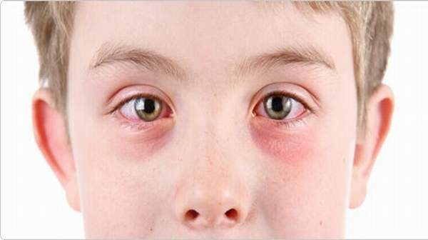 Hay fever in children