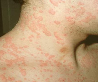 picture of urticaria