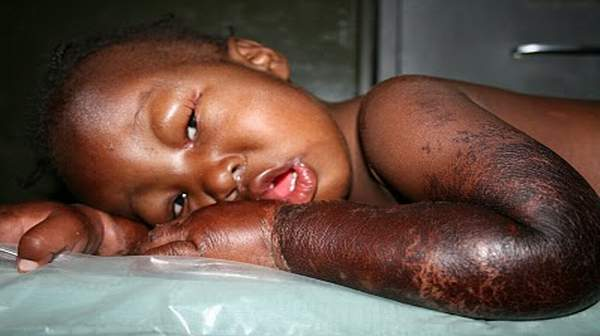 Picture of Kwashiorkor
