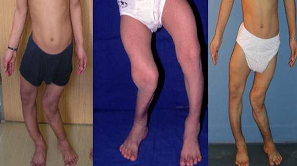 Picture of Rickets