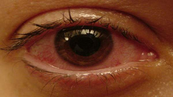 Pictureof Chorioretinitis