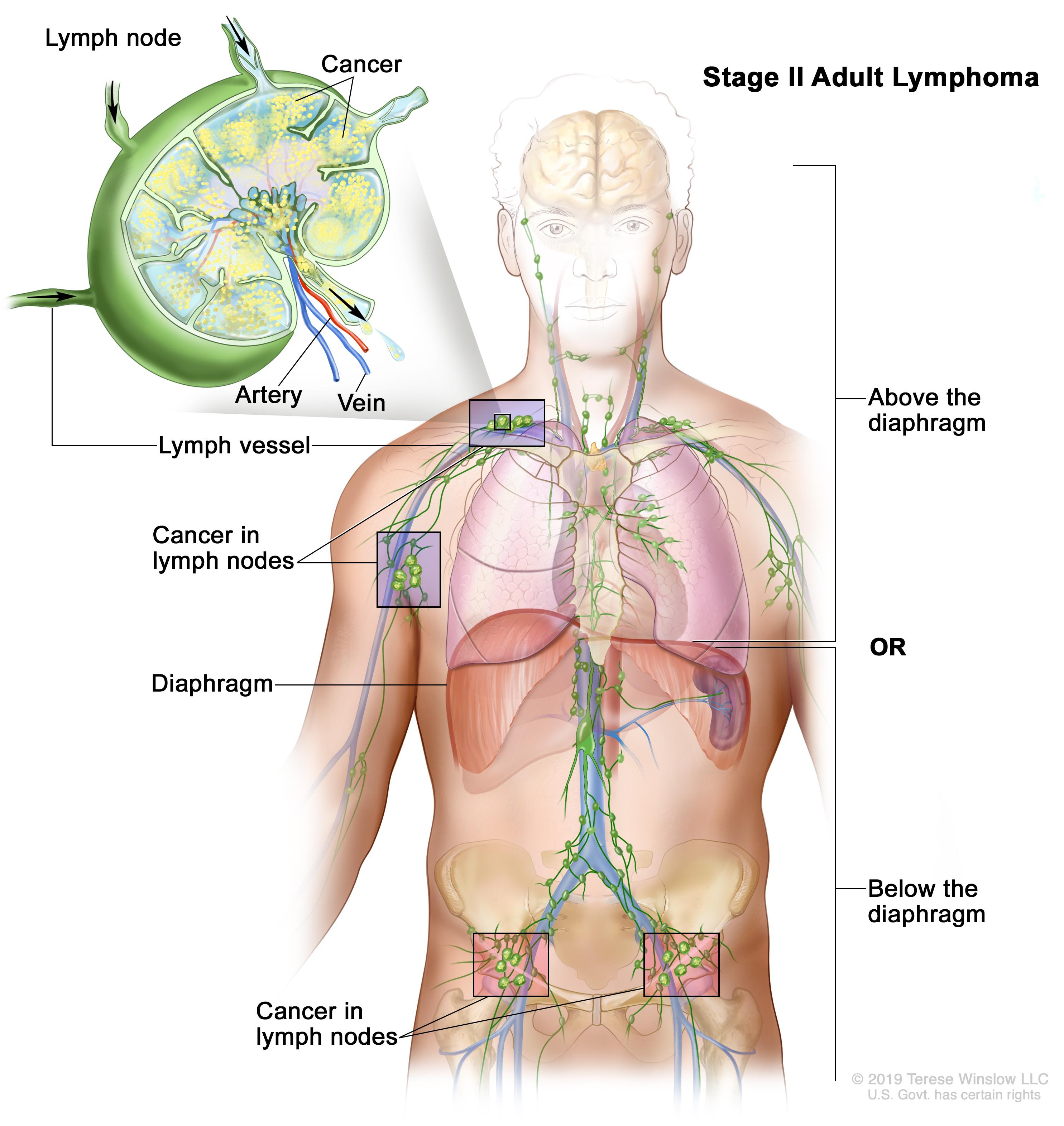 Non-Hodgkin lymphoma: Causes, Symptoms & Risk factors